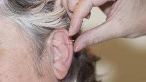 Detailaufnahme Akupunktur auf der eine Nadel in ein Ohr gesteckt wird